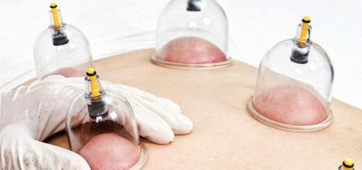 Die Schröpftherapie: einfach, aber wirkungsvoll