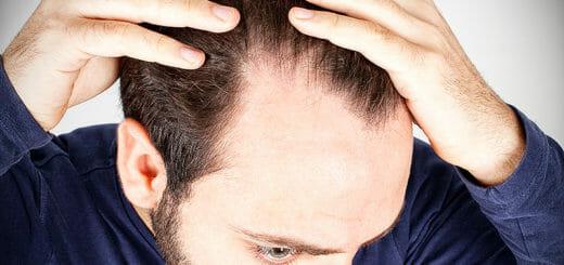 Methoden moderner Haartransplantation im Vergleich