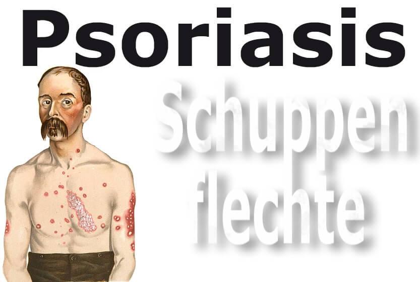 Psoriasis (Schuppenflechte)