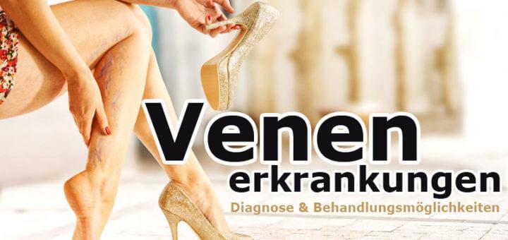 Venenerkrankungen - Diagnose & Behandlungsmöglichkeiten