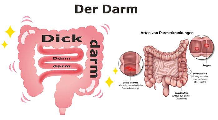 Darm und Darmerkrankungen - schematische Ansicht