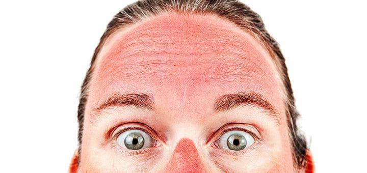Dermatitis solaris - was tun bei einem Sonnenbrand?