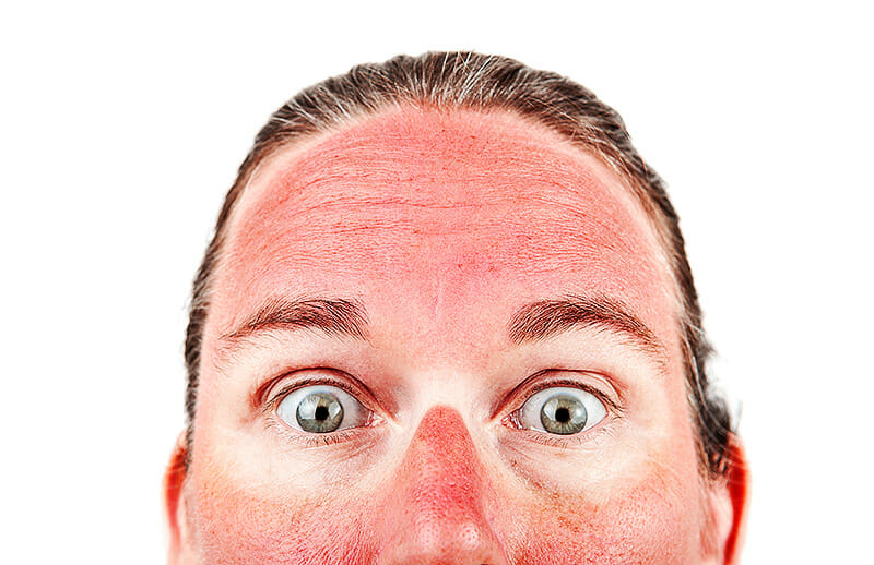 Dermatitis solaris - Sonnenbrand im Gesicht