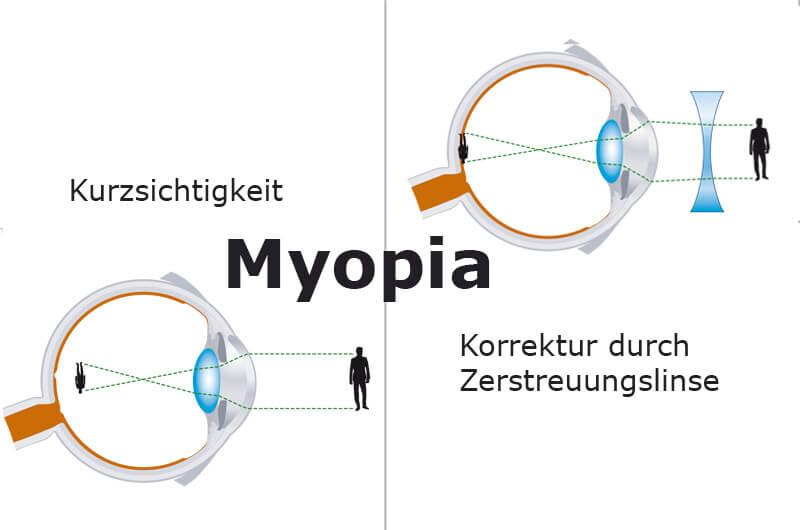 Korrektur bei Kurzsichtigkeit
