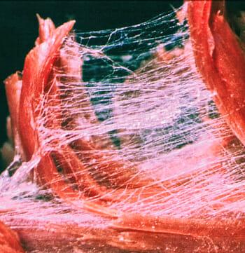 Faszien unter dem Mikroskop