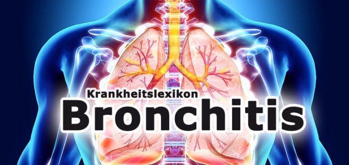 Bronchitis   Krankheitslexikon