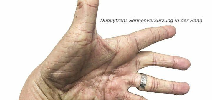 Dupuytren - Sehnenverkürzung in der Hand