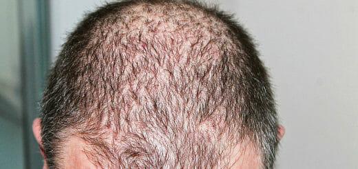 Haartransplantation: Techniken, Kosten, Praxistipps