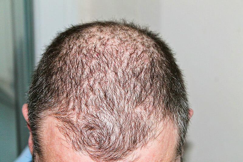 Foto nach der Haartransplantation