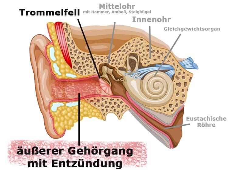 Infografik Entzündung äußerer Gehörgang
