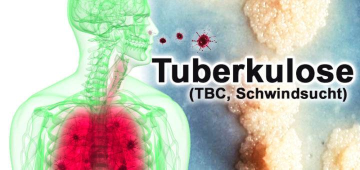 Tuberkulose | Krankheitslexikon