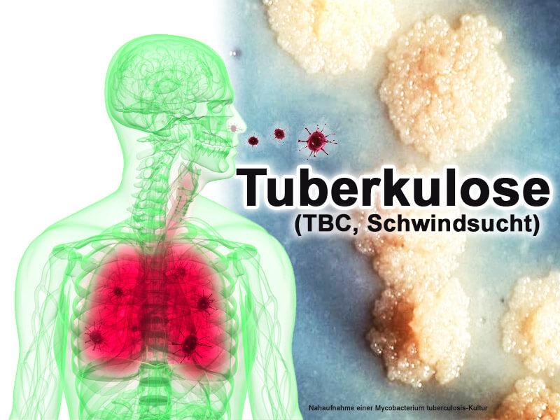 Tuberkulose, TBC, Schwindsucht