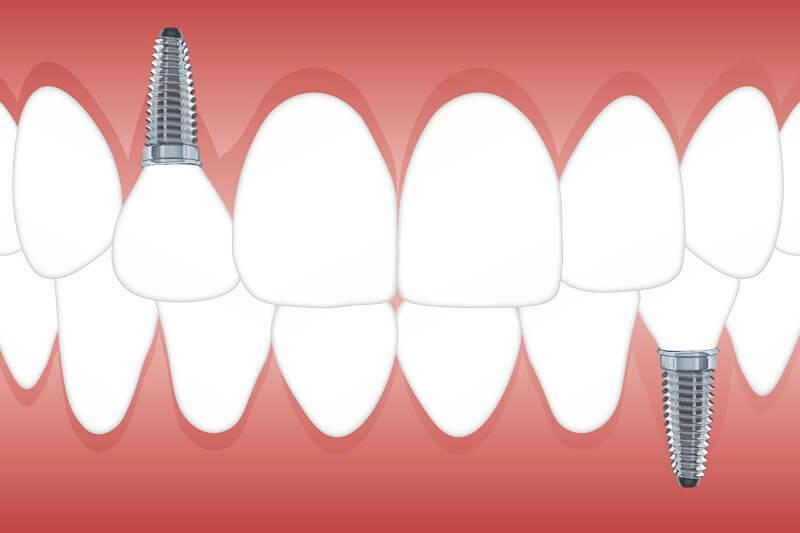 Ansicht Zahnimplantate