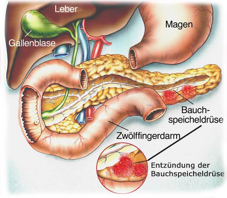 Bauchspeicheldrüsenentzündung