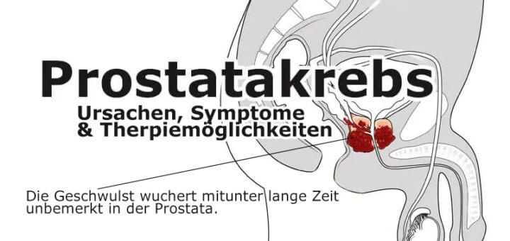 Prostatakrebs - Ursache, Symptome & Therapie