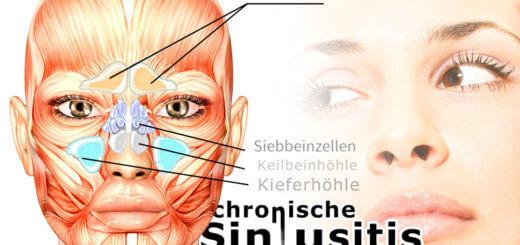 Chronische Sinusitis