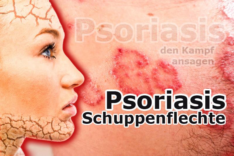 Schuppenflechte (Psoriasis) den Kampf ansagen