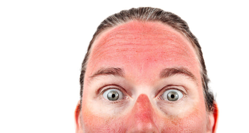 Juckreiz nach Sonnenbrand