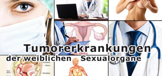 Tumorerkrankungen der weiblichen Sexualorgane