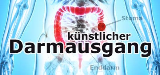 Künstlicher Darmausgang | Medizinlexikon