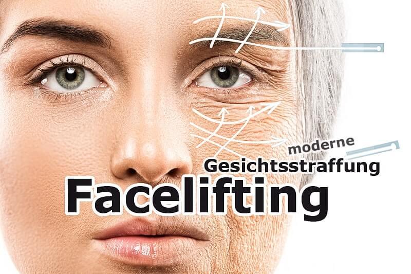 Facelifting - Methoden, Risiken & Ablauf moderner Gesichtsstraffung