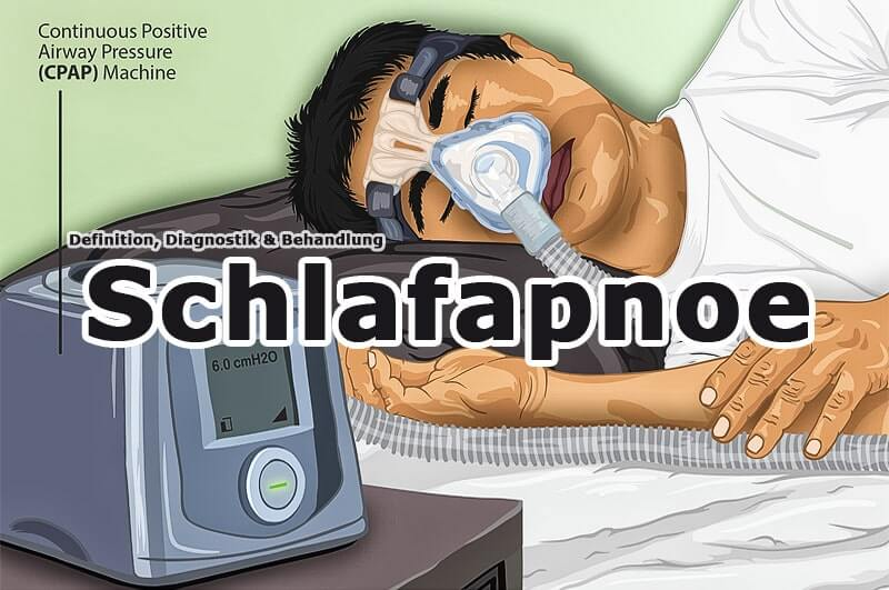 Schlafapnoe – häufig unentdeckte Volkskrankheit