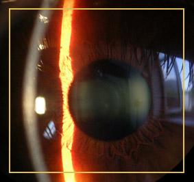 Augenzittern