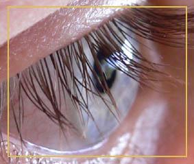 """Augenflimmern oder auch """"Augenrauschen"""" (Flimmerskotom)"""