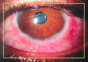 Augentripper (Gonoblennorrhoe)