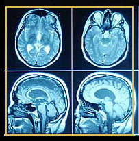 Gehirnaktivität bei Alzheimer Patienten / CT