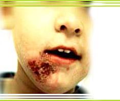Impetigo Contagiosa | Krankheitslexikon