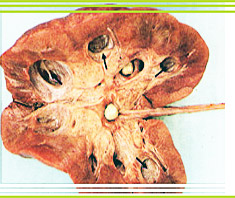Nieren- und Harnsteine (Nephrolithiasis)