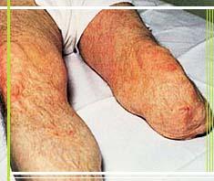 Stumpf- und Phantomschmerzen