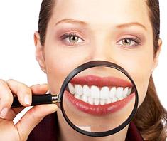 Bleaching: Zahnbleichmittel können Nebenwirkungen haben