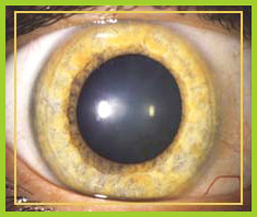 Grüner Star (Glaukom) - Früherkennung zählt