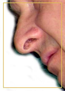 Die Nase – Funktion, Erkrankungen