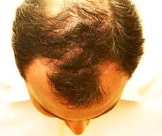 Mittel und Methoden gegen Haarausfall (Teil 1)