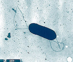 Listeria monocytogenes - genügsames Bakterium mit weiter verbreitung