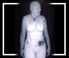 Gesundheitsschäden durch Nacktscanner?