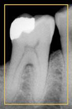 Zahnröntgen